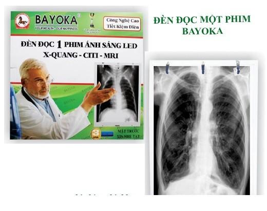 Đèn led đọc 1 phim X-quang Bayoka - Việt Nam (CT, MRI , đèn led mỏng)