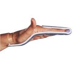 Nẹp ngón tay Iselin 821, cố định khớp ngón tay ở vị trí chức năng khi bị chấn thương